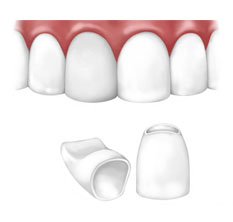 Zircon dental crown prices in Sopron.